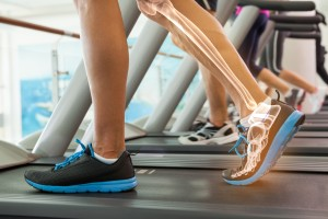 Photo of a person's legs on a treadmill walking, with graphic designed bones superimposed onto the left leg.